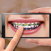 Download Braces on Photo. Editor 1.1 APK