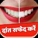 Download Teeth Whitening Tips Hindi 1.0.0 APK